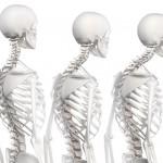 Đau lưng- thuốc gia truyền trị bệnh đau lưng
